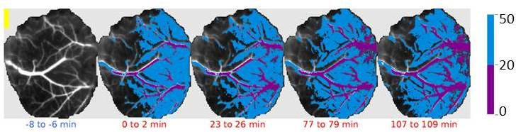 Laser speckle imaging of the brain before and after stroke. Healthy tissue (CBF >50 % of pre-stroke values) shown in gray scales. Peri-ischemic area shown in blue and ischemic core (CBF <20 % of pre-stroke values) in purple. Each panel corresponds to different times relative to stroke. Black scale bar = 1 mm.