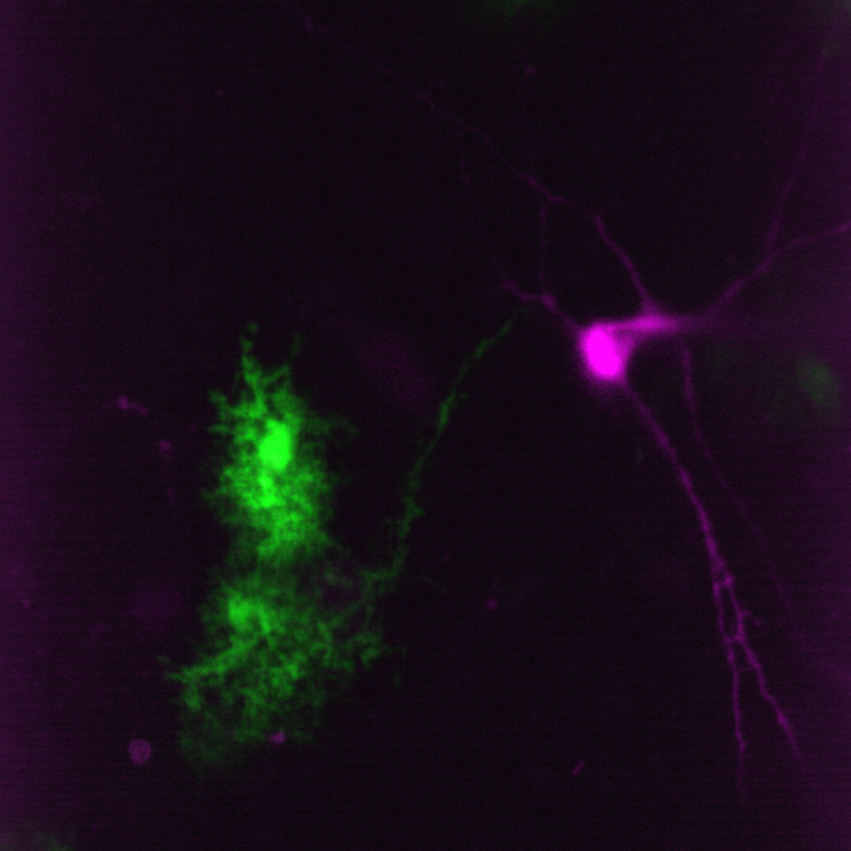 Green astro-pink neuron